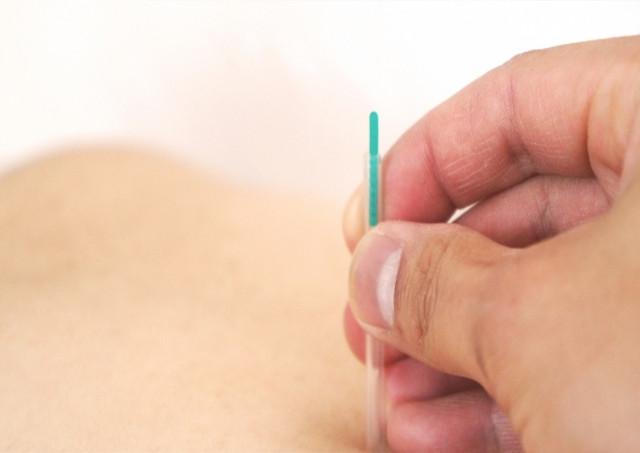 顎関節症改善と鍼灸